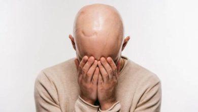 صورة دراسة: الرجال الصلع أكثر عرضة للوفاة بفيروس كورونا